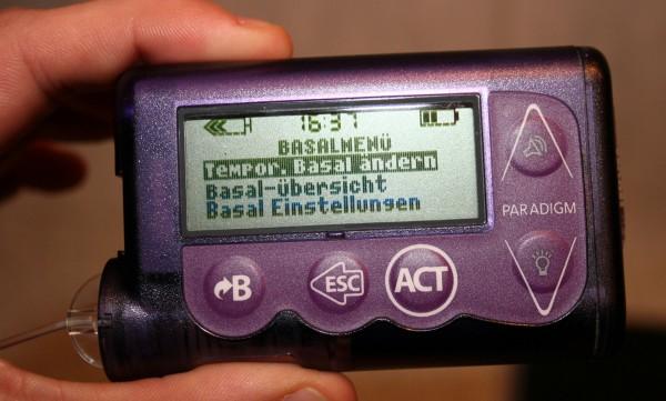 Einfach, schnell und praktisch: Moderne Insulinpumpen verfügen über die sogenannte temporäre Basalrate.