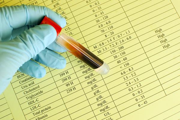 Metformin-Einfluss-auf-Cholesterin-Werte