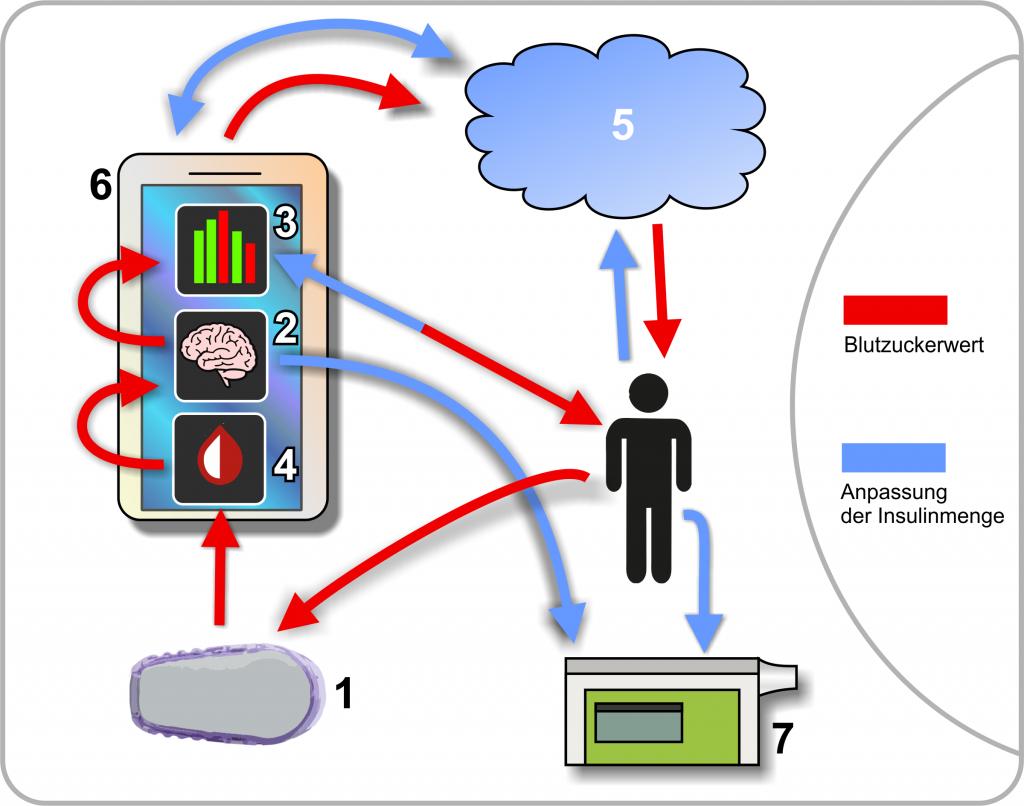 Hybrid Closed loop Marke Eigenbau: Woraus besteht ein Closed Loop System?